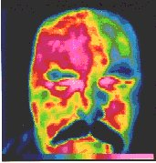 Infrared Thermography headache.jpg (11136 bytes)